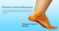 How to Soothe Heel Pain and Plantar Fasciitis With One Simple Exercise
