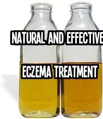 A friend who has battled eczema for over 20 years, swears by this natural and effective eczema treatment, which she invented.