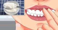 Gingivitis is a result of bacteria in the gums, and it causes gum disease. So you should start treating it in the early stage. The symptoms of gingivitis are: bleeding around the gums, swollen gums, receding gums, and inflammation of the gums. Baking With Coconut Oil, Baking Soda And Lemon, Coconut Oil For Teeth, Coconut Oil Pulling, Gum Health, Oral Health, Teeth Health, Dental Health, Healthy Teeth