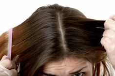 natural ways to get rid of dandruff - bad spelling in the article