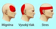 Při bolestech hlavy častolidé okamžitě sahají po tabletkách. Jde však o nebezpečný zvyk, který může vést k poškození ledvin, jater a střev. Existuje mnoho alternativních způsobů pro dosažení úlevy od bolesti hlavy. Jedním z nich je použití akupresury. Co je akupresura Akupresura je starověká metoda aplikace masáže a tlaku na určité tělesné body, výsledkem čehož …