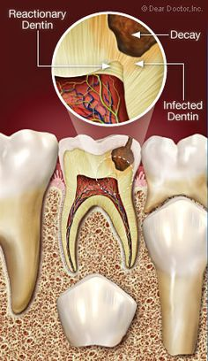 Dental Life, Dental Art, Dental Pictures, Cracked Tooth, Dental Anatomy, Dental Office Decor, Root Canal Treatment, Tooth Pain, Nutrition Classes