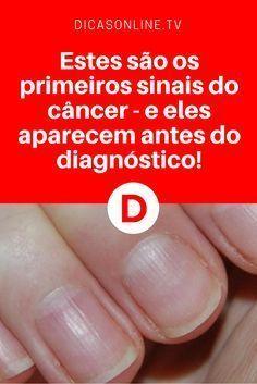 Sintomas de câncer | Um desses sinais é nas unhas. Saiba tudo sobre ele e os outros. Leia ↓ ↓ ↓