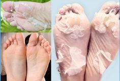 Get Soft Feet with This Efficient Method | pinterest : @tileeeeyahx3 ☼