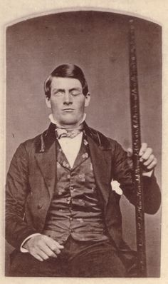 Phineas Gage - in 1848 Phineas was working on the railway when a terrible accident saw him receive an iron tamper through his cheek up into his brain and out the top of his head.  Minutes after the accident Phineas was up and walking around able to carry on conversation. He went on to recover from his accident but friends and family report that he was a different man, altogether, from the Phineas they knew. This Phineas was prone to outbursts and lacked inhibition. His accident served to…