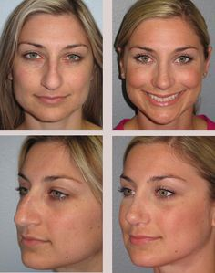 Nose Surgery (Rhinoplasty) Before and After Photos