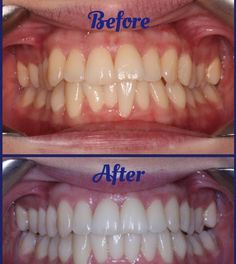Did you know justin bieber chose invisalign to straighten his teeth did you know justin bieber chose invisalign to straighten his teeth its the clear alternative to braces give yourself the smile you deserve sch fun solutioingenieria Images