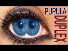 Pupula Duplex : Eyes With two Pupils