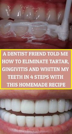 A Dentist Friend Told Me How To Eliminate Tartar, Gingivitis And Whiten My Teeth In 4 Steps With This Homemade Recipe - Power of Natural Life - zahnpasta Natural Remedies For Allergies, Natural Headache Remedies, Natural Remedies For Anxiety, Natural Health Remedies, Herbal Remedies, Dry Feet Remedies, Cold Remedies, Teeth Health, Healthy Teeth