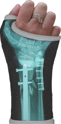 Waterproof X-ray cast decal, How do peps come up with these things??  I like it though!
