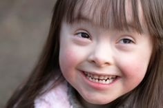 Children with Down's Syndrome have a 1:100 chance of developing Acute Leukaemia.   http://www.cells4life.com/what-can-stem-cells-be-used #CordBlood #StemCells #Downs #DownsSyndrome #Leukaemia