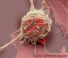 Bone cancer cell.                                                                                                                                                     More