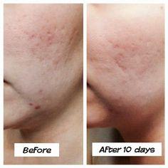 Stretch mark cream, 10 days www.erinwrapsandmore.com