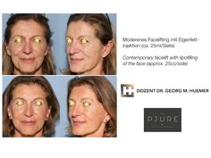 Vor und nach operativer Gesichtsstraffung = Facelift Face, Wels, Linz