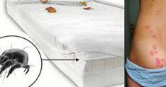 """Πώς να καθαρίσετε το στρώμα του κρεβατιού σας! Απαλλαγείτε από τα ακάρεα που """"περπατούν» πάνω του Η τακτική αλλαγή σεντονιών στο κρεβάτι, από μόνη της, δεν"""