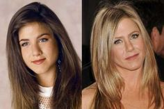 Jennifer Aniston nose job before and after cosmetic surgery - Plastic Surgery Jennifer Aniston Nose Job, Jennifer Aniston Plastic Surgery, Jenifer Aniston, Botox Before And After, Celebrities Before And After, Plastic Surgery Photos, Celebrity Plastic Surgery, Makeup Transformation, Celebs