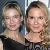 Renee Zellweger Is Now Completely Unrecognizable - Yahoo Celebrity Don't end up like Renee Zellweger! Rodan and Fields has products to help your skin look and feel best, minus surgery AND needles! www.jillhudak.myrandf.com