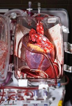 "rightatrium: """" A human heart destined for transplant lies cradled in a TransMedics Organ Care System. The device can keep a heart warm and beating—and viable for many hours longer than the conventional method for handling donor hearts: immersion in. Medical Students, Medical School, Nursing Students, Arte Com Grey's Anatomy, Surgical Tech, Medical Science, Science Humor, Science Pics, Human Heart"