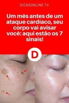 Vinagre de maçã e salsa para rosto | Lave o seu rosto com esta mistura antes de dormir e se surpreenda com os resultados. INCRÍVEL!