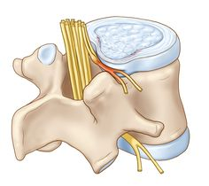 """""""Bulging disc"""" is when the material of the disc bulges into the area where the spinal nerves are found, which can cause pain. The outer layers of the intervertebral discs weaken, and sometimes tear, allowing the material contained in the disc to leak out. Spinal Nerve, Sciatic Nerve, Nerve Pain, Sciatica Exercises, Back Pain Exercises, Intervertebral Disc, Disk Herniation, Hip Problems, Health Problems"""