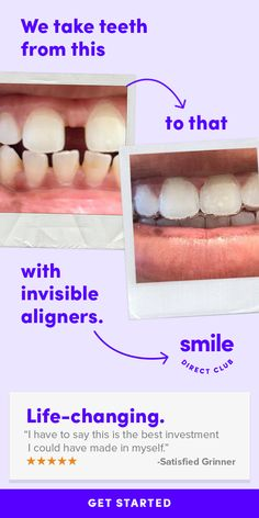 SmileDirectClub invisible aligners straighten your teeth completely from home and for less than half the price of other competing systems. Contemporary Garden, Contemporary Interior, Contemporary Office, Contemporary Architecture, Teeth Care, Skin Care, Contemporary Wallpaper, Diy Countertops, Quiz