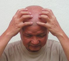 How to do a simple head massage. My simple head massage effective in dissipating head pain and headache. Very easy and practical.  Watch me on video.