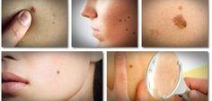 Meilleur guide des remèdes cutanés de divers problèmes liés à la peau