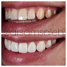 Post op review of NO PREP #veneers to close gaps between teeth. #drsamsaleh #drsaleh #beverlyhillsdentist #londondentist #dubaidentist #porcelainveneers #smilemakeover #smile #mannymua #cosmeticdentistry #cosmeticdentist by drsamsaleh Our Cosmetic Dentistry Page: http://www.myimagedental.com/services/cosmetic-dentistry/ Google My Business: https://plus.google.com/ImageDentalStockton/about Our Yelp Page: http://www.yelp.com/biz/image-dental-stockton-3 Our Facebook Page…