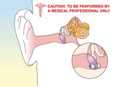 How+to+Unclog+the+Inner+Ear+or+Eustachian+Tube+--+via+wikiHow.com