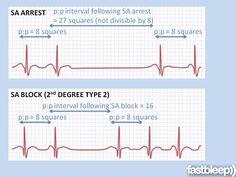 Bradyarrhythmias - Cardiology | Fastbleep