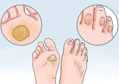 How to Remove Calluses Naturally - Heathy Ideas For You Corn On Toe, Get Rid Of Corns, Pedicure Colors, Fungal Nail, Rides Front, Tan Skin, Healthy Tips, Healthy Food, Natural Health