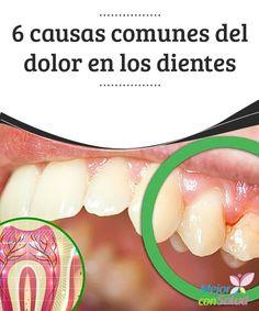 6 causas comunes del dolor en los dientes  El dolor en los dientes es el principal motivo de consulta en las clínicas especializadas en odontología. Se trata de un síntoma muy incómodo cuya intensidad y características varían según la causa que lo origine.