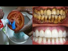 Magical Teeth Whitening Remedy, Get whiten Teeth at home in 2 minutes.How to whiten your teeth at home in just 2 minutes. Teeth Whitening Methods, Teeth Whitening That Works, Natural Teeth Whitening, Whitening Kit, Winter Beauty Tips, Health And Beauty Tips, Remedies For Tooth Ache, Teeth Care, Skin Care Remedies