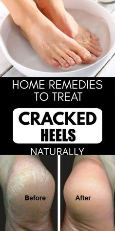 Home Remedies To Treat Cracked Heels Naturally #crackedheels #skincare #skincaretips #skincaretips #beautifulskin Face Care Tips, Beauty Tips For Face, Skin Care Tips, Face Tips, Beauty Secrets, Natural Hair Mask, Natural Hair Styles, Beauty Care, Beauty Skin