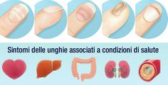 Cosa dicono le unghie sulla nostra salute