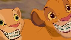 It's Time To Look And Feel Great With #Braces. Just Look At Simba & Nala's Braces. #dentalhumor #brushyourteeth #teeth #dental #orthodontics #brushflossrinse #Glendale #orthodontist #Smile #braceface