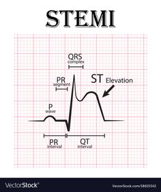 Ecg of st elevation myocardial infarction stemi Vector Image Cardiac Nursing, Nursing Mnemonics, Nursing Information, Nclex, Critical Care Nursing, Nursing School Notes, Emergency Medicine, Nursing Students, Student Nurse