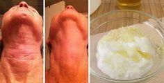 Come eliminare le rughe del collo con il lievito di birra | Rimedio Naturale