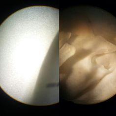 Repolho /microscópio/ lupa  Brassica oleracea var. sabellica