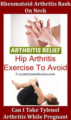 10 Best Reactive Arthritis Images On Pinterest Reactive
