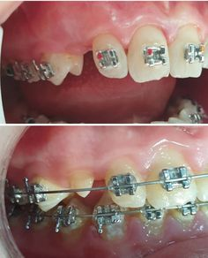 Dental Braces, Braces