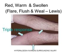 To Study The Response of Skin To Blunt Injury (Triple Response)