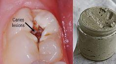 heal-cavities-gum-disease-whiten-teeth-natural-homemade-toothpaste-1024x536