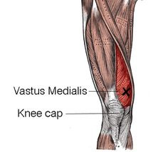 Where is the VMO muscle? http://sportskneetherapy.com/the-best-vmo-exercises/