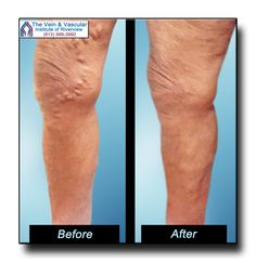It is rewarding to see our patients enjoying great varicose vein removal results. At The Vein & Vascular Institute of Riverview we're proud to know that our vascular surgeons are making a difference in our patients' lives. Learn more about varicose vein removal at our Riverview FL vein center at:  https://www.veinandvascularinstituteofriverview.com/riverview-varicose-vein-removal-pictures/