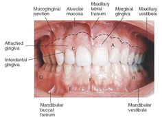 Clinical appearance of gingiva. A, Attached gingiva above and interdental papilla below; B, mucogingival line separating attached gingival from mucosa; C, free gingival margin; D, posterior vestibular fornix; E, anterior vestibular fornix or mucobuccal fold; F, frenum area.