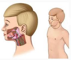 Viral Infections of the Mouth: Overview, Human Herpesvirus, Human ...