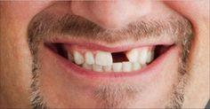 Sorprendente!! Te falta un diente? Haz crecer un diente en solo dos meses, Dile adiós a los implantes y prótesis dentales… Esto es increíble, no lo podía creer!! | Salud con Remedios