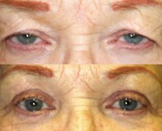 Dr. John Burroughs, Colorado Springs Cosmetic and Reconstructive Plastic Surgeon, Shares A Before and After Result For Combined Blepharoplasty and Ptosis Repair.  John Burroughs, MD PC Surgery Eyelids, Face, and Orbits Colorado Springs, Pueblo, Canon City 719-473-8801