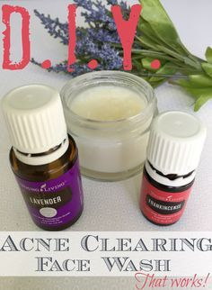 Face Wash That Clears Acne A DIY face wash that blends coconut oil, baking soda and two essential oils. It's easy to make and it WORKS!A DIY face wash that blends coconut oil, baking soda and two essential oils. It's easy to make and it WORKS! Essential Oils For Face, Young Living Essential Oils, Essential Oil Blends, Essential Oils Pimples, Oil Face Wash, Acne Face Wash, Face Skin, Acne Oil, Coconut Oil For Face